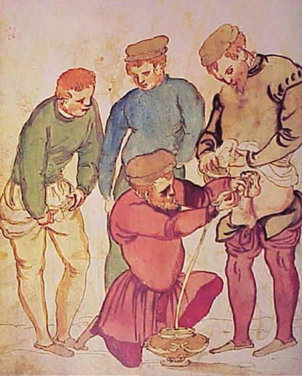 Painful Medical Procedures Of Medieval Times Catheter